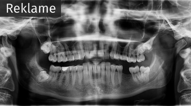x-ray-961977_960_720